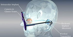 How the retinal implant works.