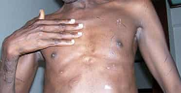 Sadiq, a victim of torture in Darfur