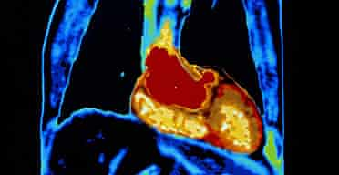 A coloured MRI scan of healthy heart and lungs