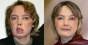 Isabelle Dinoire pictured after her face transplant operation carried out jointly by an Amiens and Lyon team of surgeons.