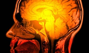 MRI scan of a human head.