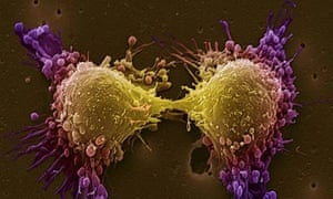 Coloured scanning electron micrograph of two prostate cancer cells in the final stage of cell division