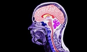 MRI scan side