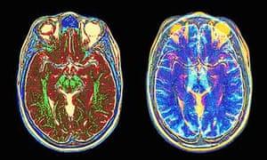 MRI scans tops