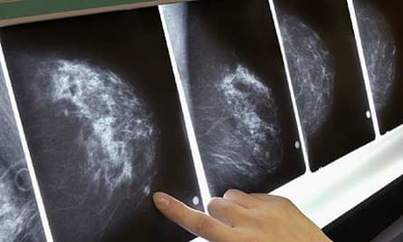 Mammogram scans for breast cancer
