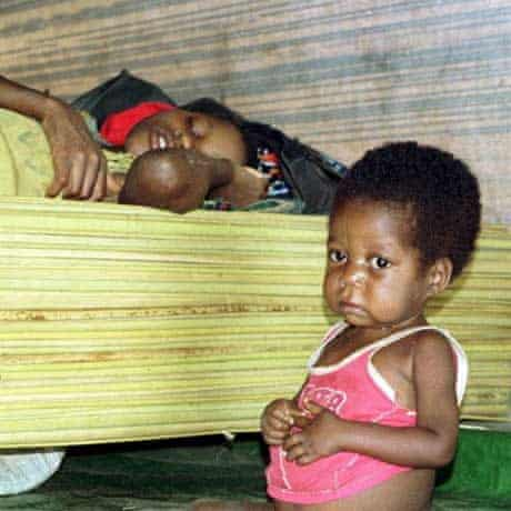 Malnourished child and mother afflicted with sleeping sickness