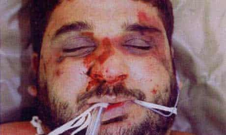 Postmortem photograph of Baha Mousa