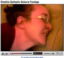 Epileptic seizure footage on YouTube