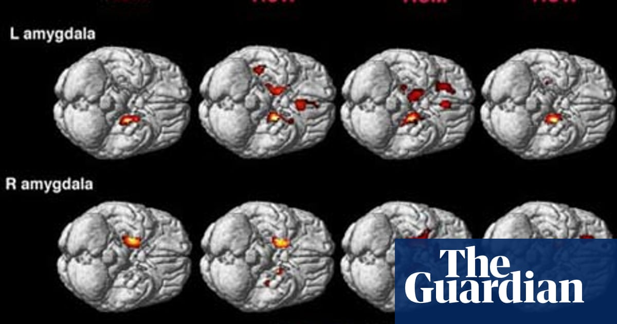 Gay men and heterosexual women have similarly shaped brains