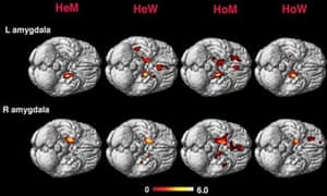 Brain scans showing electrical activity according to sexuality