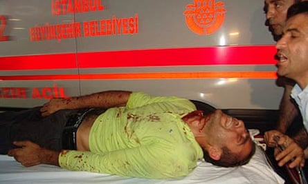 An injured man is taken to hospital following the explosions in Istanbul