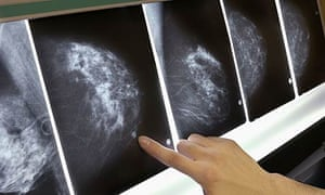 A close-up of a mammogram x-ray