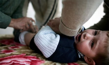 A Muslim boy cries as a doctor performs a circumcision on him