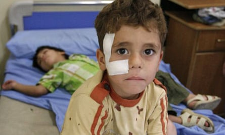 A Syrian boy, wounded in a bomb blast, sits on a hospital bed in Damascus
