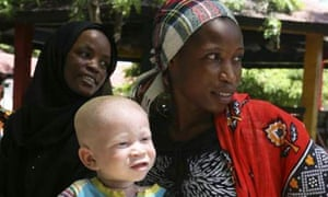 A woman holds her albino child