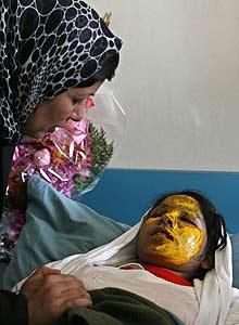 Afghan woman victim of acid attack