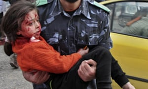 A wounded girl is carried to hospital after Israel's attack on Gaza