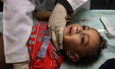 Injured boy at Shifa hospital in Gaza City
