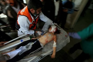 Gallery Gaza: Palestinians wheel an injured girl to the hospital