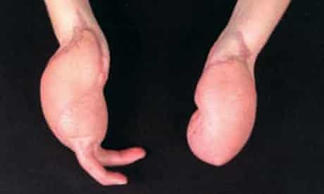 schoolgirl loses fingers
