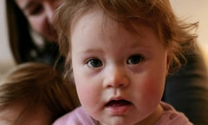 Down's syndrome case study
