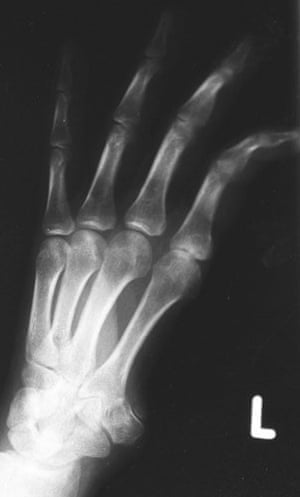 X-rays of torture: Torture x-rays