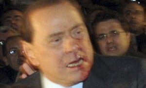 Italy's prime minister Silvio Berlusconi leaves Duomo's square with blood on his face