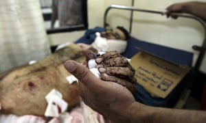 A man injured in a suicide bombing gets treatment in the Kazimiyah hospital in Baghdad