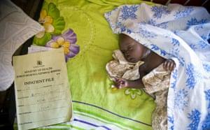 World Malaria Day : Uganda: Katine project