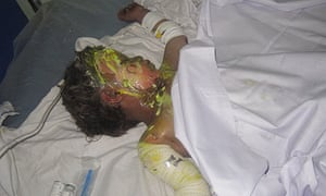 An injured Afghan child at the hospital in Farah province