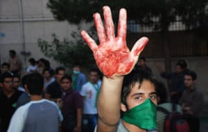 Iran protests: A protestor holds up a hand covered with blood