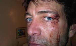 Ian Griffin in picture showing an injury he claims was sustained when Kinga Legg hit him