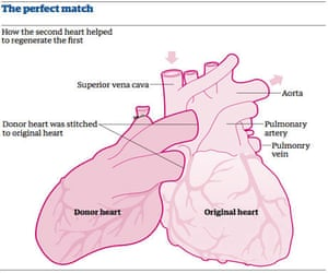 Organ donation the miracle of a girl who borrowed a heart piggybacked heart ccuart Choice Image