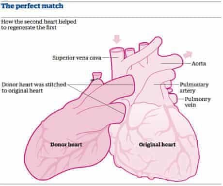 'Piggybacked' heart
