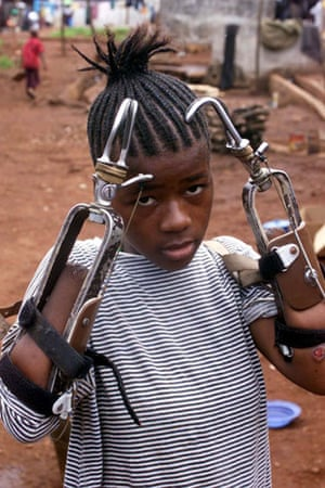 Charles Taylor: 2000: Fourteen year old shows her artificial limbs in the Amputee camp