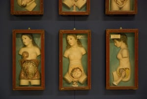 Exquisite Bodies: Exquisite Bodies at the Wellcome Collection