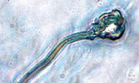 A microscope image of IVD sperm