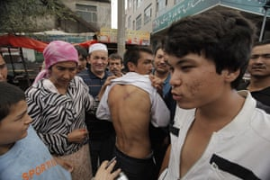 Urumqi: Uighurs show off what they claim to be wounds from fighting on the streets