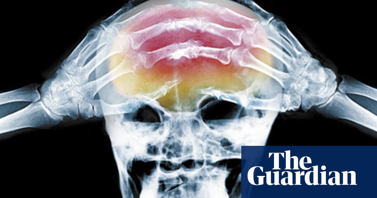 Where's your headache at? | Life and style | The Guardian