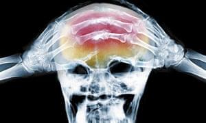 X-ray of headache