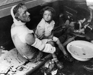 WW2 begins: Injured Family Poland 1939