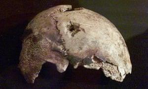 Fragment of Adolf Hitler's skull