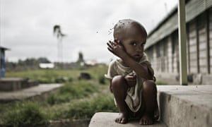 A malnourished boy at a feeding centre in Ethiopia