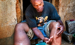 Fighting The War Against Elephantiasis Society The Guardian