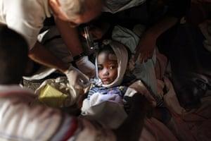 haiti update 2: A injured child receives medical treatment earthquake in Port-au-Prince