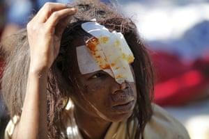 haiti update 3: An injured resident waits for medical earthquake in Port-au-Prince