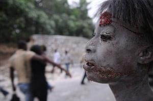 haiti update 3: An injured person is seen after an earthquake hit Port-au-Prince, Haiti