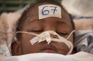 David Levene in Haiti: Jean Chandula, 3, is treated at the Jean Damien children's hospital