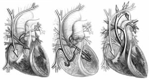 From the heart: Heart photo competition: Blood flow
