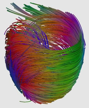 From the heart: Heart photo competition: Muscle fibres